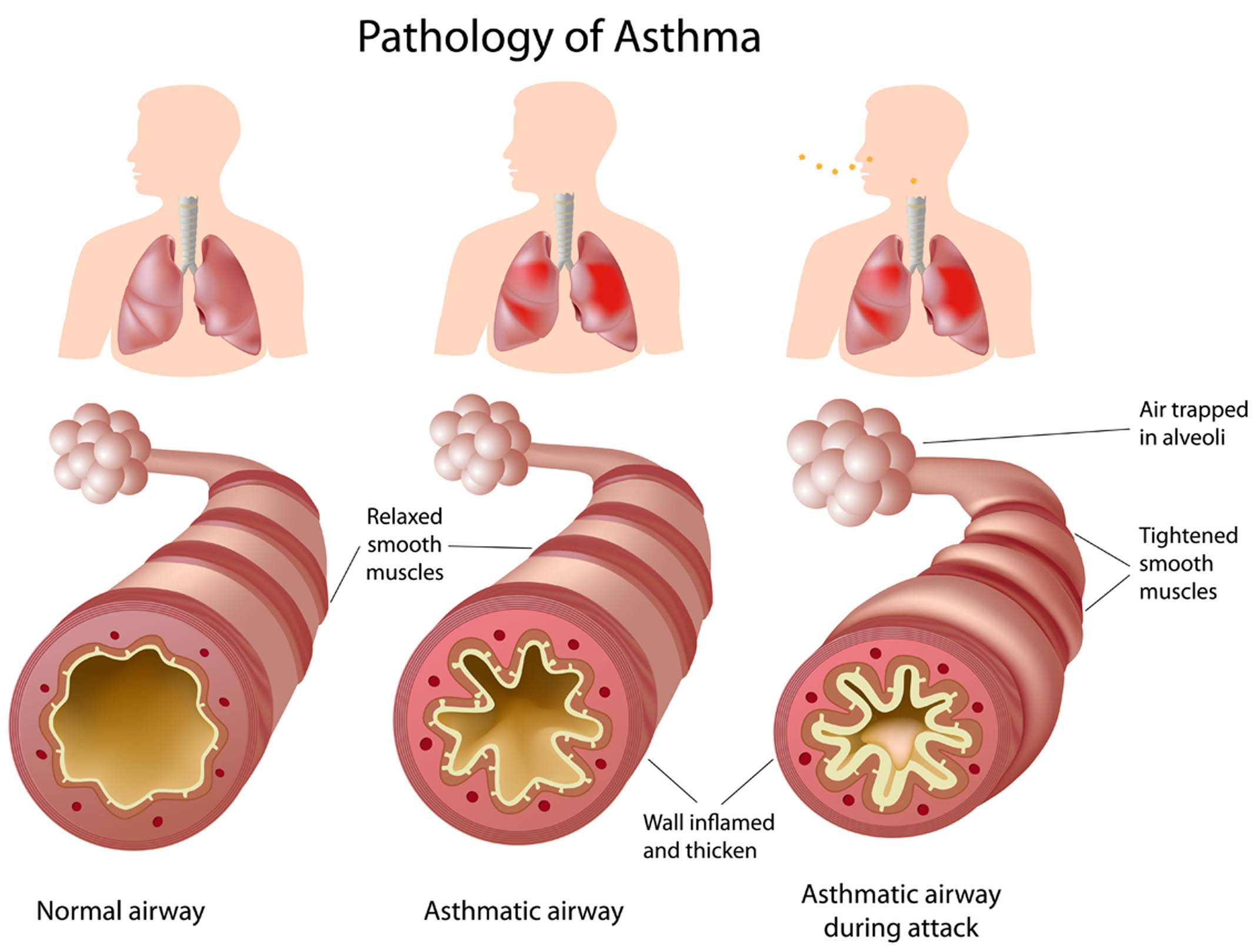 canadian asthma consensus guidelines 2 0 1 2 u p d a t e